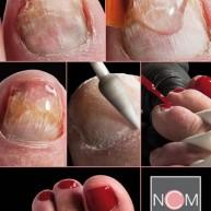 NCM SculptureGel Saschas Pedicurepraktijk